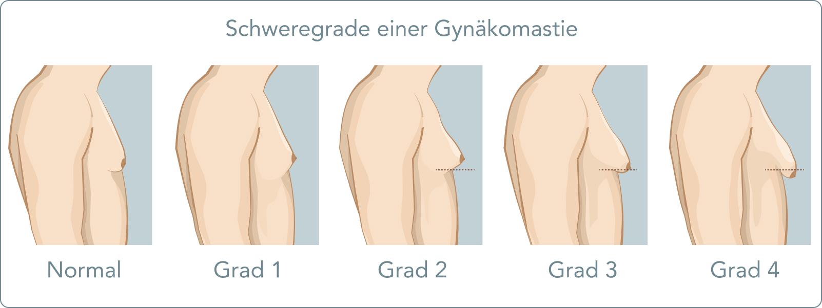 Geschwollen mann brustdrüse Brustschmerzen (Mastodynie):
