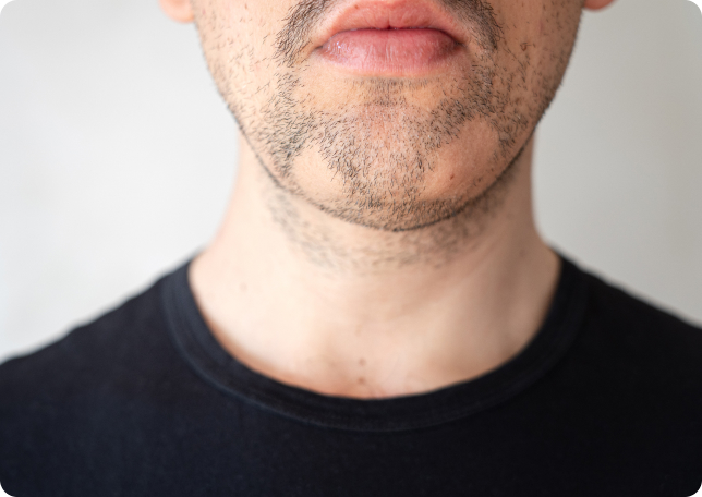Bart kaschieren fliehendes kinn Rundes Gesicht