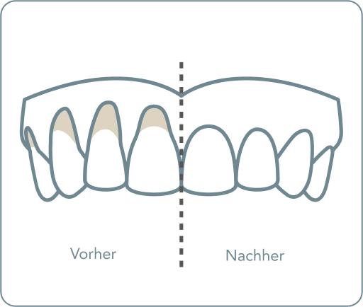 Nachher zahnfleischtransplantation vorher Vorher ./.