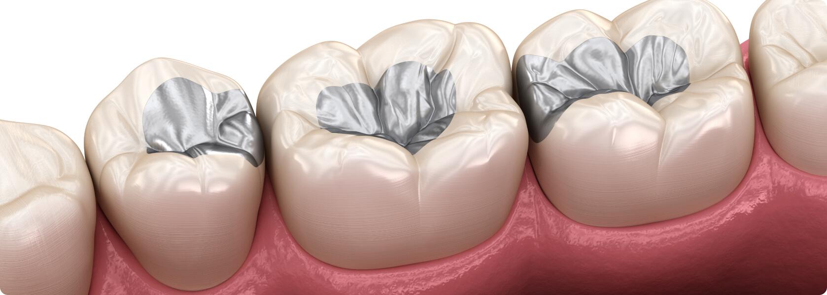 Zahnfüllung rausgefallen provisorische Welche Füllung