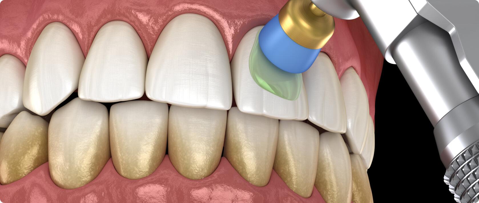 Wurzelbehandlung nach zahn verfärbt sich grau Wird Zahn