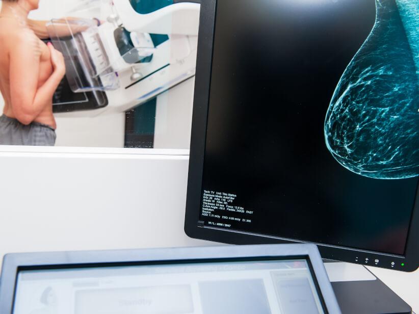 10 Fragen zur Brustrekonstruktion nach Krebs