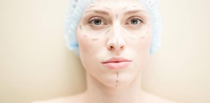 Totale Gesichtstransplantation: Wie das jüngste Mädchen in der OP-Geschichte ein neues Gesicht bekam