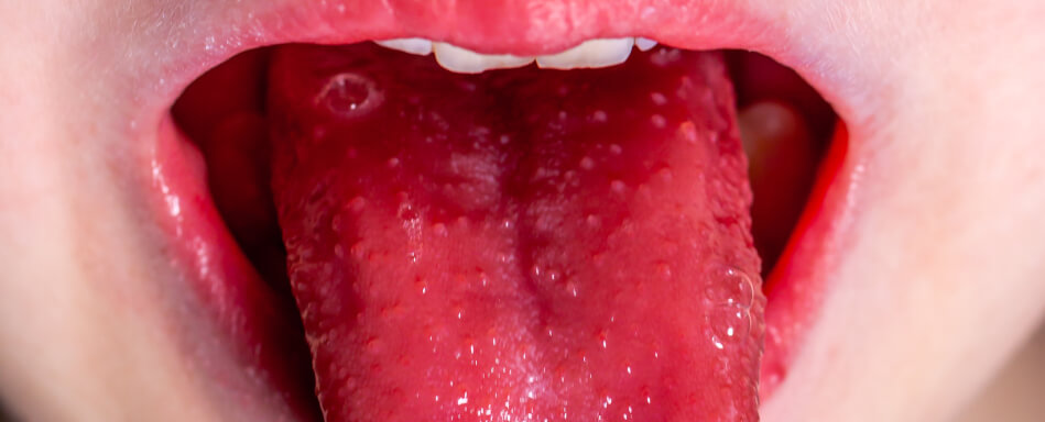Hornzipfel Ciclopirox