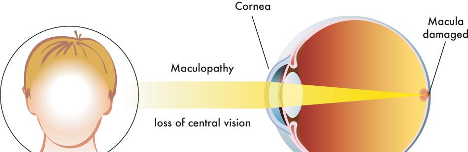 Die ersten Symptome einer Makuladegeneration sind Schwierigkeiten beim Lesen und beim Erkennen von Gesichtern