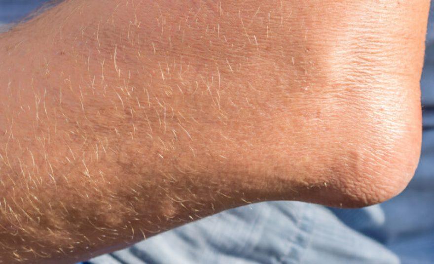 symptome lepra