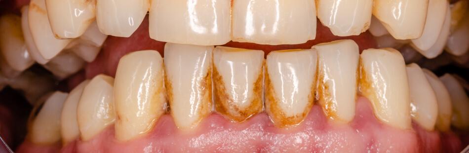MOOCI. Zahnverfärbungen - Das kannst Du dagegen tun
