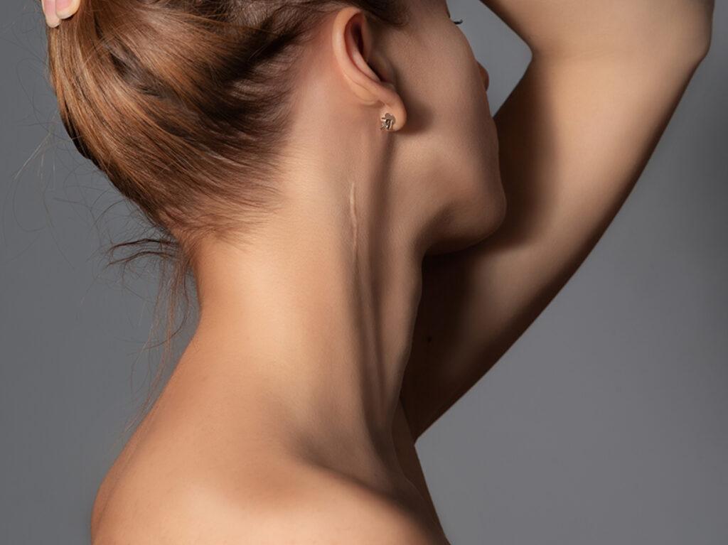 Narbenpflege
